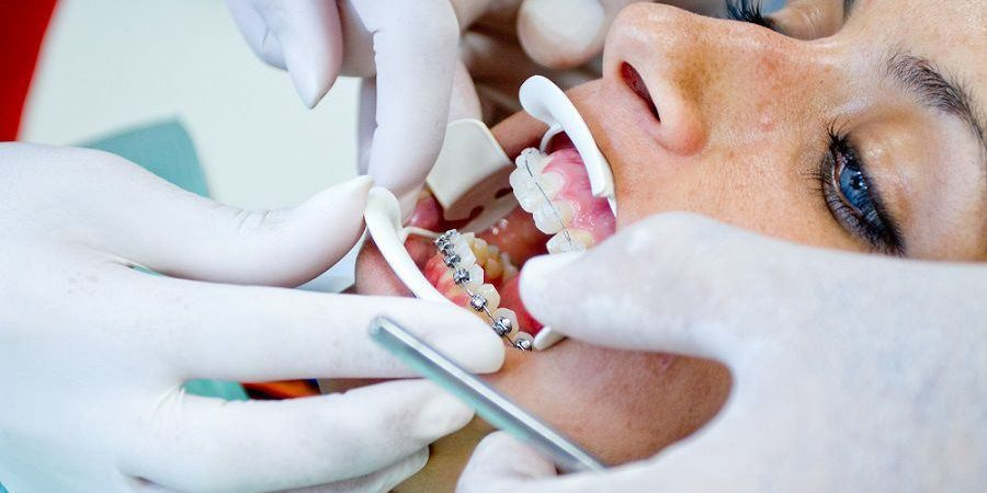 Ordinacija izbeljivanje zuba iskustva